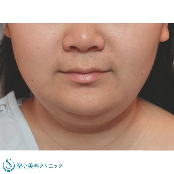 症例写真 術前 小顔に整形