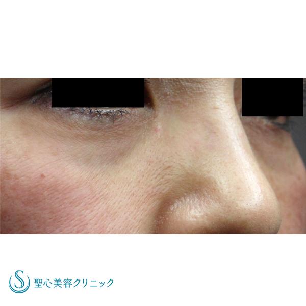 症例写真 術前 目のくま・くぼみ・たるみ・眼瞼下垂