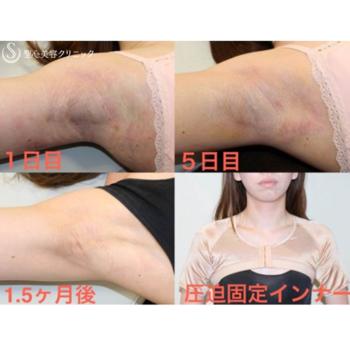症例写真 術後 多汗症・わきが治療 ミラドライ