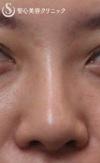 症例写真 術後 鼻のプロテーゼ+耳介軟骨