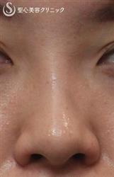 症例写真 術前 鼻のプロテーゼ+耳介軟骨
