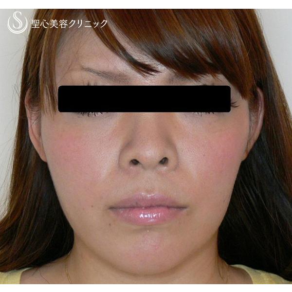 症例写真 術後 小顔に整形