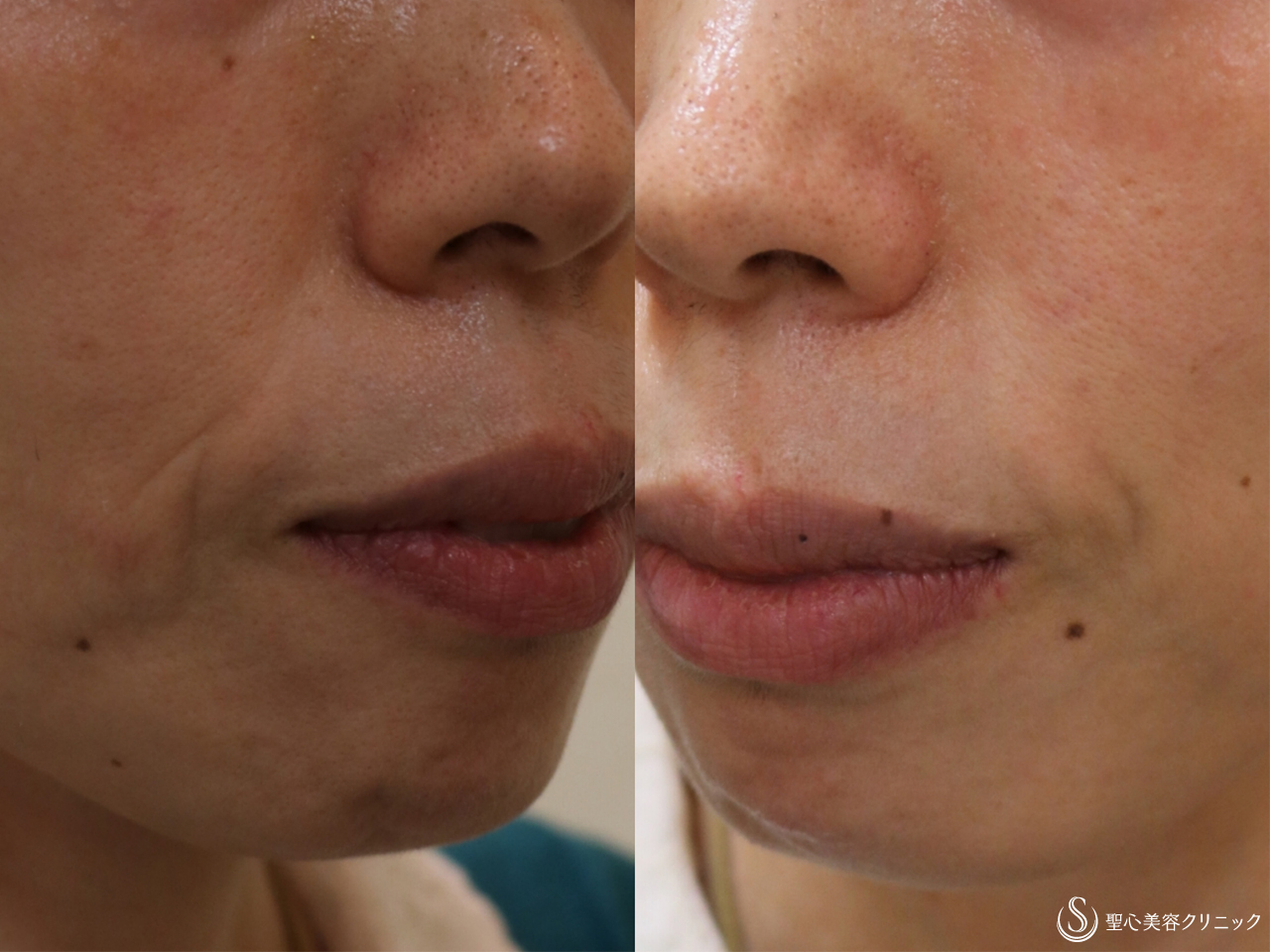症例写真 術前 プレミアムPRP皮膚再生療法