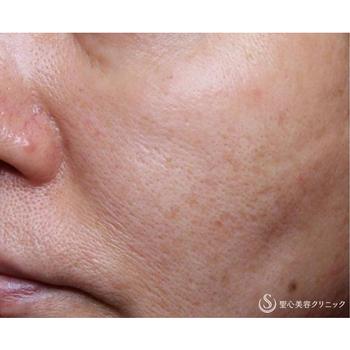 症例写真 術後 美容皮膚科 ニキビ跡・毛穴・たるみ