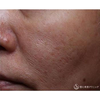 症例写真 術前 美容皮膚科 ニキビ跡・毛穴・たるみ