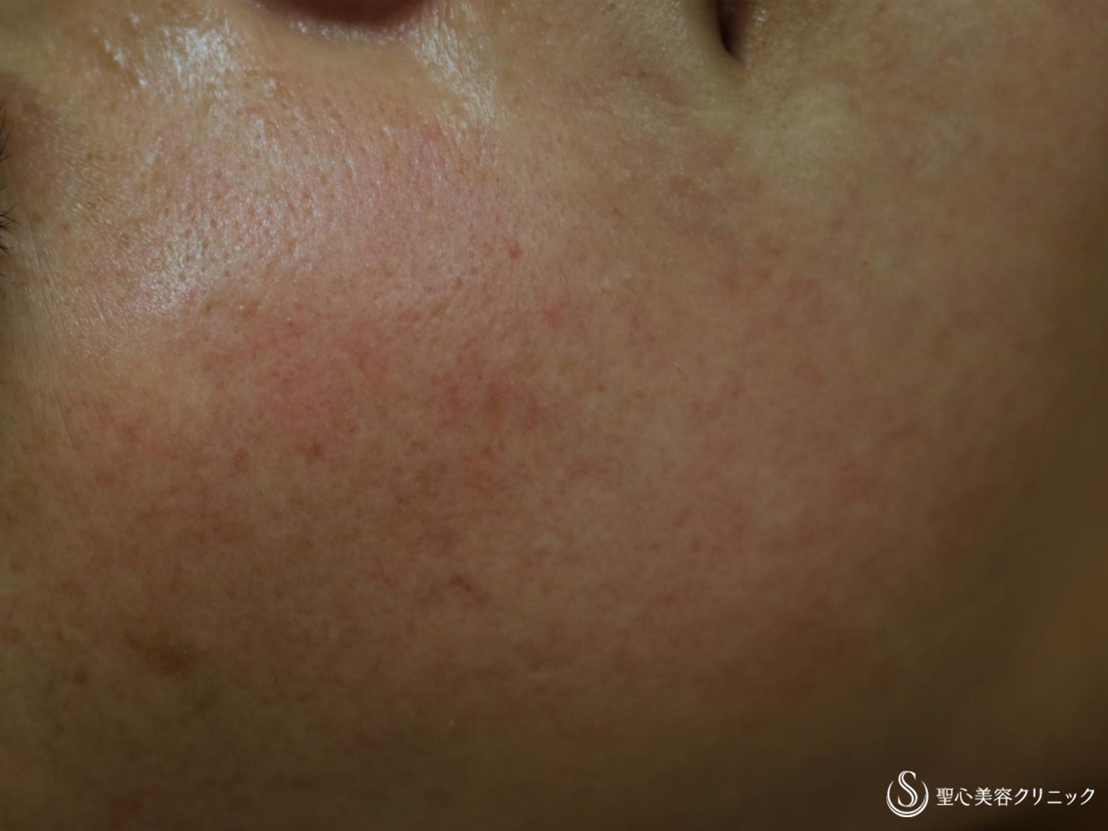 症例写真 術前 細胞上清クリーム+トラネキサム酸内服