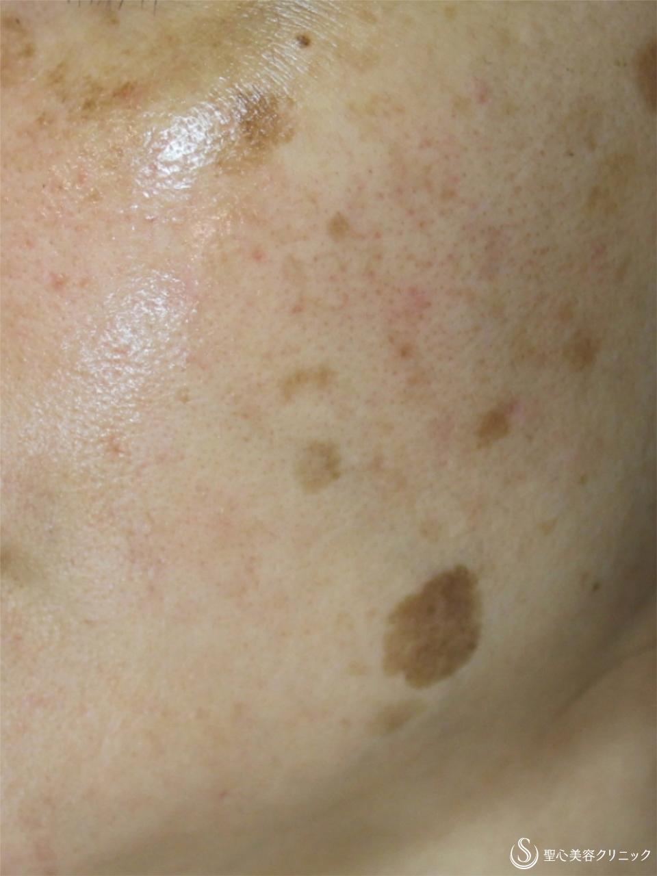 症例写真 術前 レーザー+ライムライト+ヒト脂肪幹細胞上清クリーム